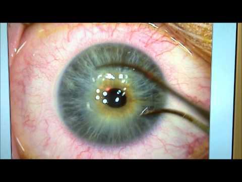 Kosmoteros la crème-correcteur rajeunissant pour le contour des oeil les rappels
