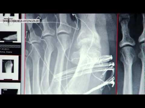 Die Entzündung des Zapfens auf dem Daumen des Beines die Behandlung