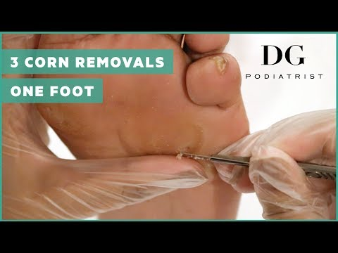 , title : 'Corn removal with callus: Three corns on one foot!