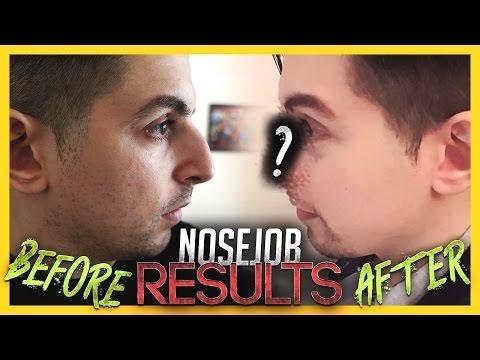 I Got a Nose Job! Before & After Results! | Gross Gore
