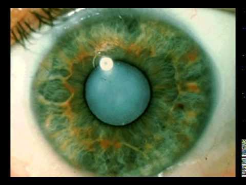 Морщины под глазами сильные