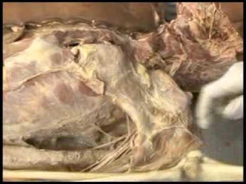 Na tumutulong upang linisin ang katawan ng lahat ng mga parasitiko