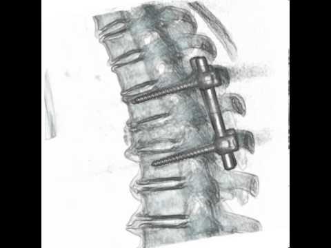 Struktum für Rückenschmerzen