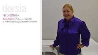 Abdominoplastia y liposucción de flancos - Testimonio Nelly Estrada - Clinica Dorsia Marbella