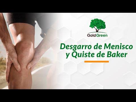 Estiramiento de los ligamentos de la articulación de la rodilla debido a la ejecución