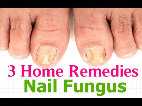 , title : '3 Home Remedies For Nail Fungus - Toenail Fungus Treatment'