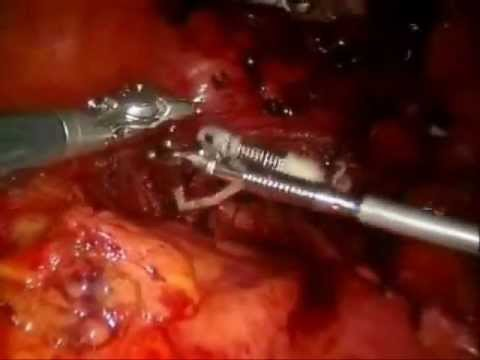 EndoGrab for Retraction During Robotic Hysterectomy