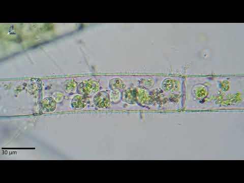 cum să froti locul după îndepărtarea papilomului viermi rotunzi în mușchii umani