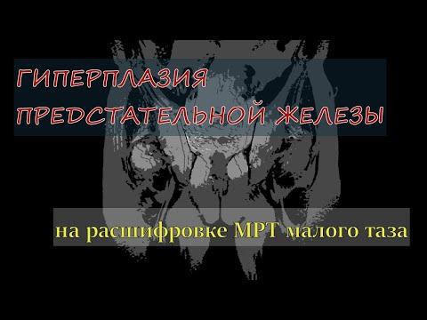 Csontfájdalom prosztatitis
