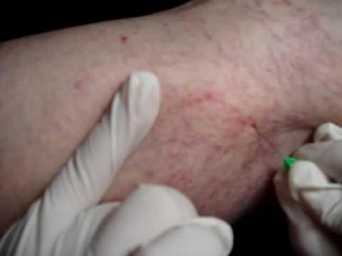 Varicosity con ulcere