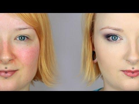 Dlaczego przebarwienia na twarzy w czasie ciąży