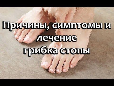 Gribok des Nagels auf den Beinen die Salbe
