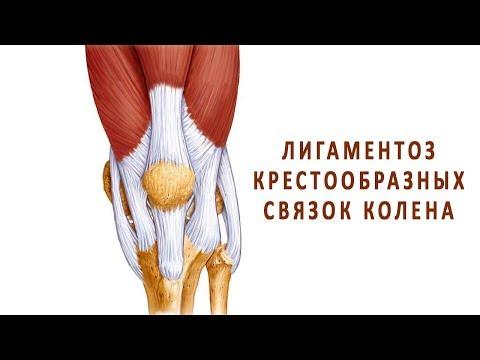 Лигаментоз крестообразных связок коленного сустава