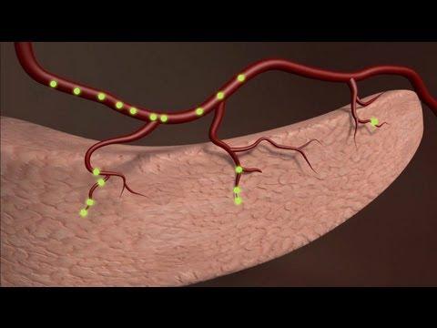 Suppression des démangeaisons de la peau dans le diabète