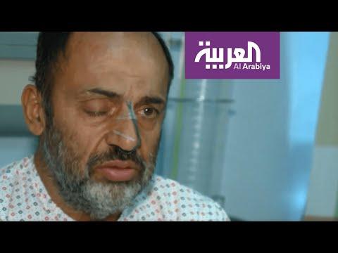 العرب اليوم - شاهد: إيراني خمسيني يستعيد بصره بعد عملية جراحية في