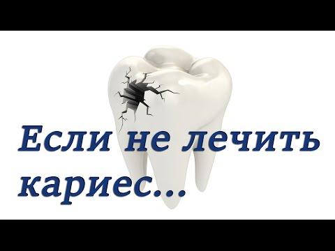Паразиты у человека симптомы лечение таблетки