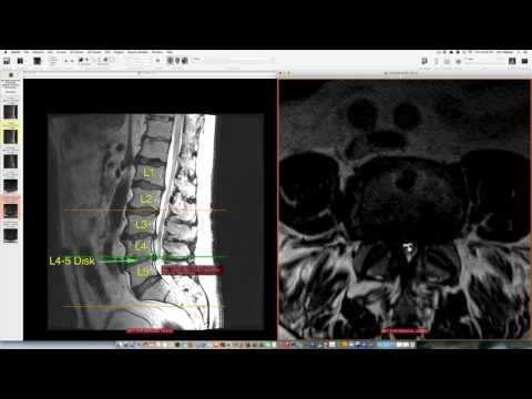 Pomata per il dolore della colonna vertebrale e ritorno