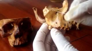 Anatomíaa - Práctica De Hueso Maxilar (Caras, Bordes, Apófisis Palatina)