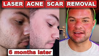 Acne Scar Removal Before And After 6 Months:  Fractional C02 Laser Skin Resurfacing