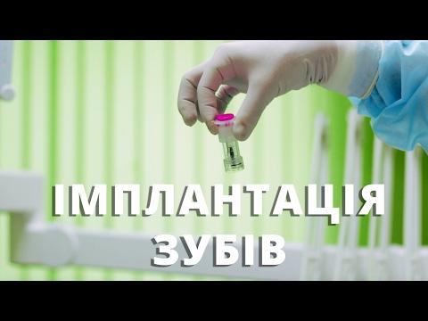 Імплантація зубів у Львові. Стоматологічна клініка Олександра Драганчука