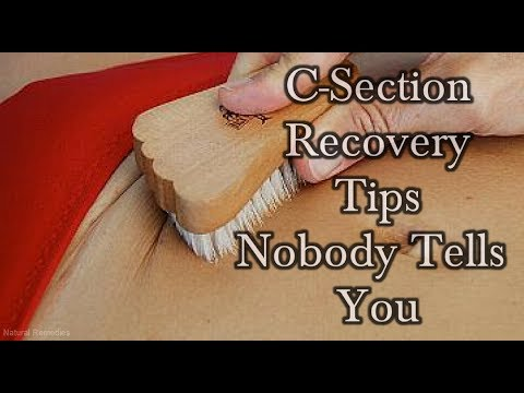 Video 5 C-Section Recovery Tips That Nobody Ever Tells You!