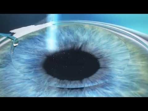 Очки для увеличения полей зрения