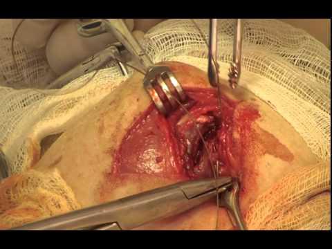 Болезнь Пертеса. Резекция бедренной кости.