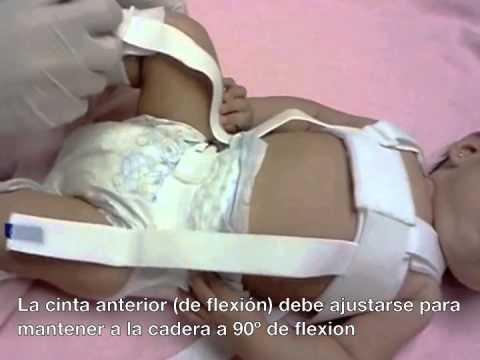 Dolor en la parte lateral y posterior