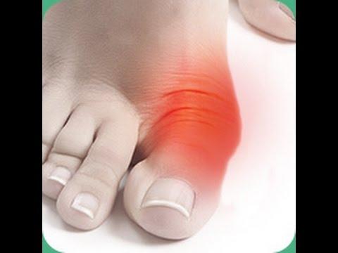 Исправление косточки на ноге valgus