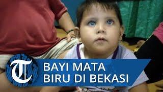 Viral Bayi Punya Bola Mata Biru di Bulak Sentul Bekasi
