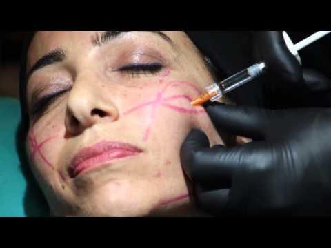 Nevralgia cervicale trattamento unguento