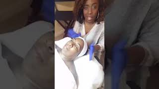 How to perform Microneedling