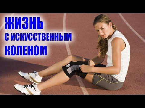 Восстановление после замены коленного сустава - как жить с искусственным коленом?