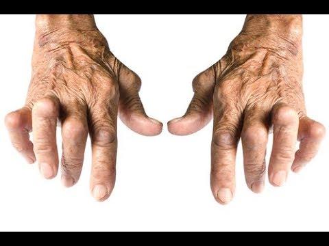 Dureri articulare deget care medic