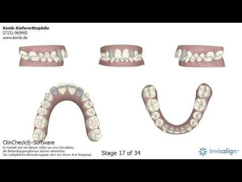 Wirbelsäulen Herniation der Halswirbelsäule