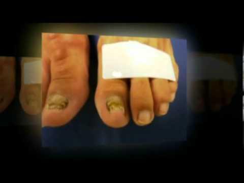 เจ็บขากับกระดูกของนิ้วเท้าใหญ่