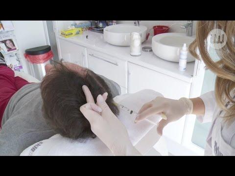 Triphala olej włosy