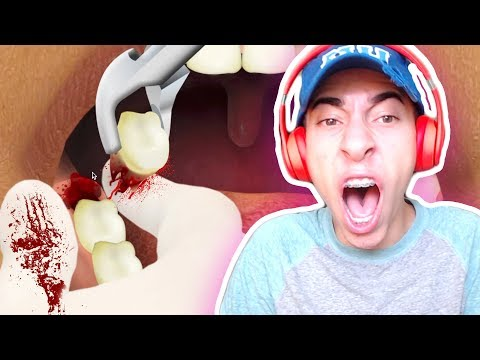 WISDOM TEETH REMOVAL GONE WRONG! ORAL SURGERY GAME