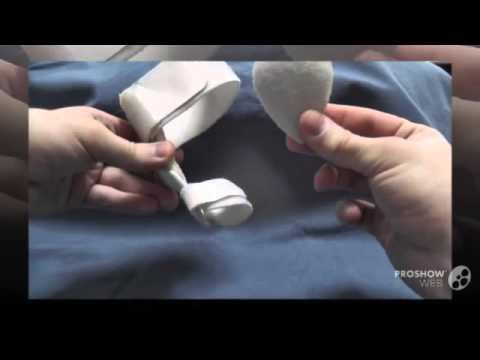 Вальгусные стопы у ребенка в 2 года