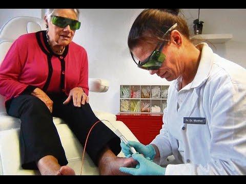 Die Behandlung gribka auf den Nägeln der Beine lozeril
