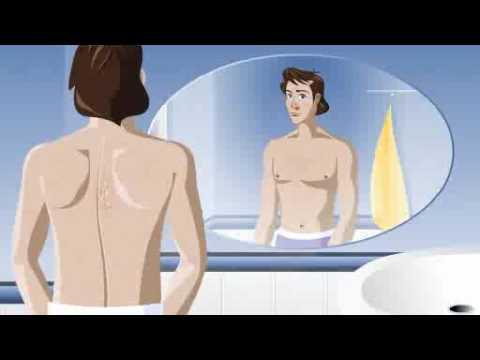 HLS środki folk na atopowe zapalenie skóry