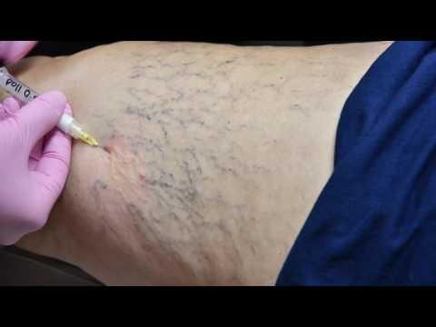 Che spalmare gambe allatto di espansione di vene con
