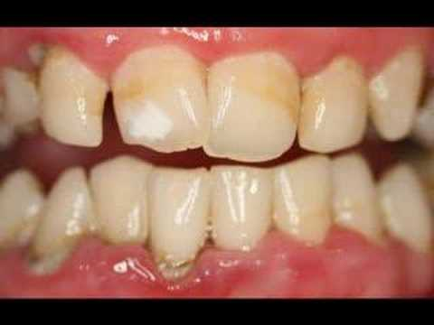 Video Gum disease is the main cause of tooth loss.