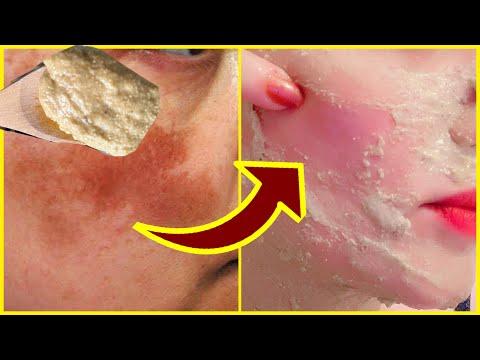 Pikkelysömörhöz bőrvédő kenőcs
