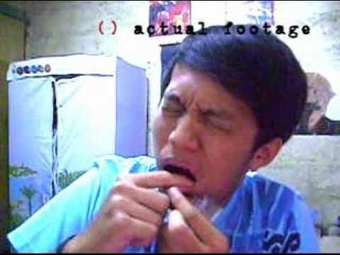 Kung paano mapupuksa ang kuko halamang-singaw