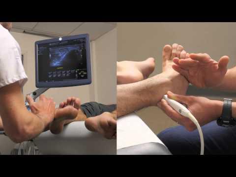 Bauch-Übungen Prostatitis