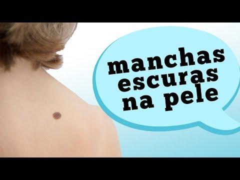 Freckles at edad spot presyo review