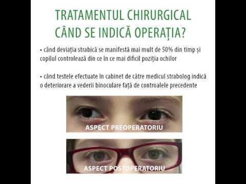 Ce produse pentru acuitatea vizuală