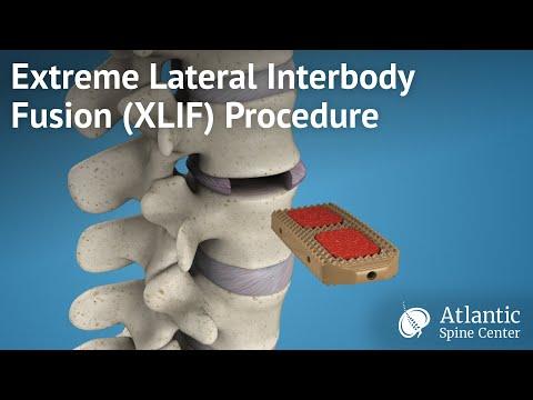 I raggi X della colonna vertebrale per il mal di schiena