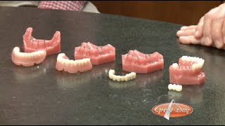 Mini Dental Implants, How They Work.
